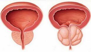 Hogyan ellenőrizze magát a prostatitisen Prostatitis fok és típusok